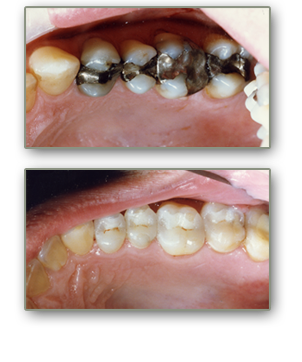 henderson dental inlays and onlays