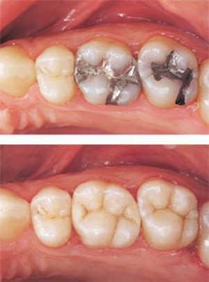 restorative dentistry mercury free fillings
