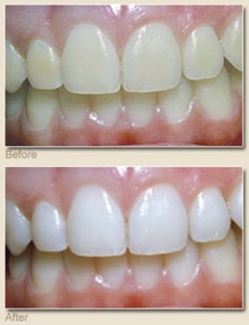 teeth-whitening-henderson-nv