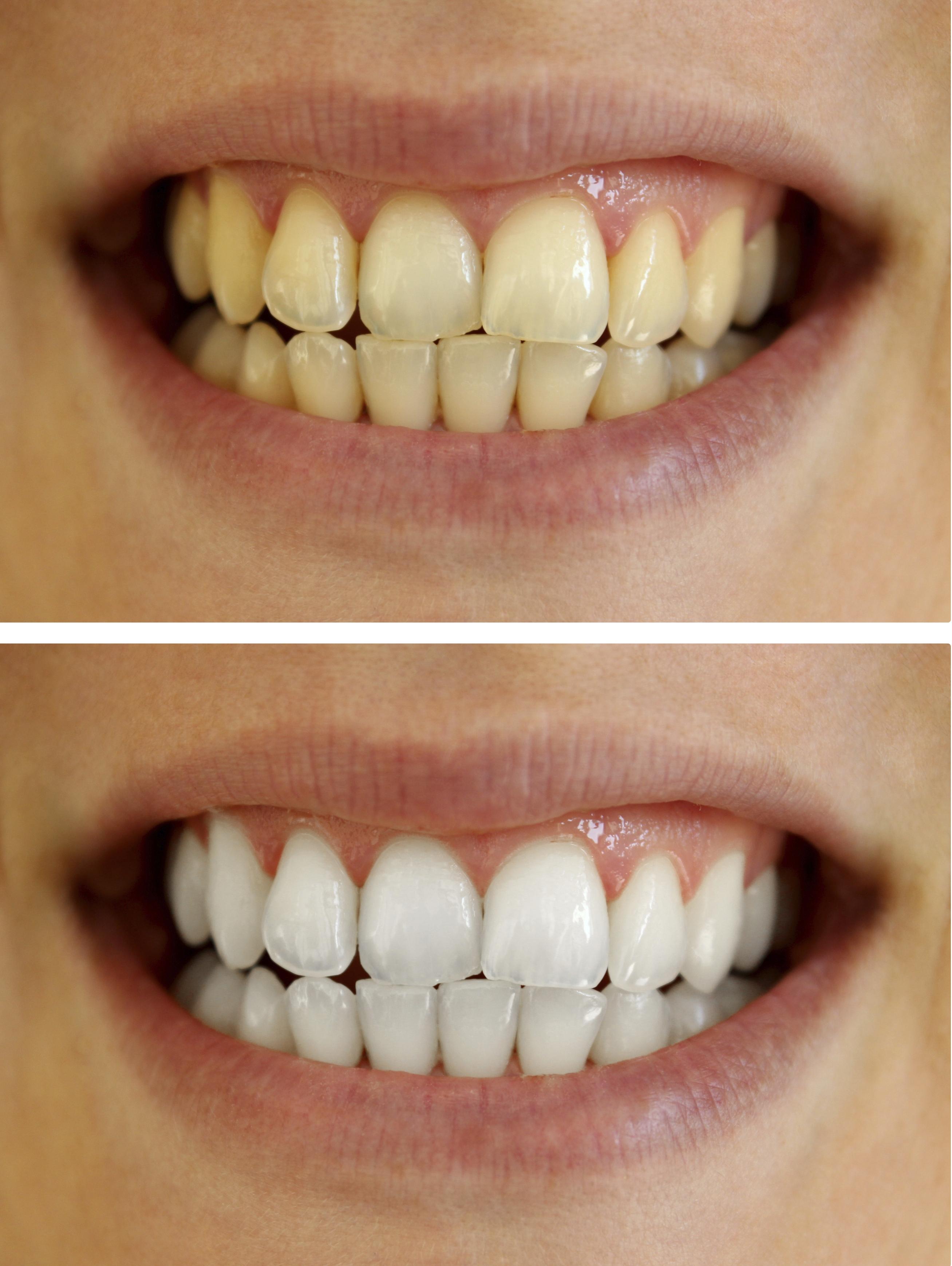Как спилить зубы в домашних условиях